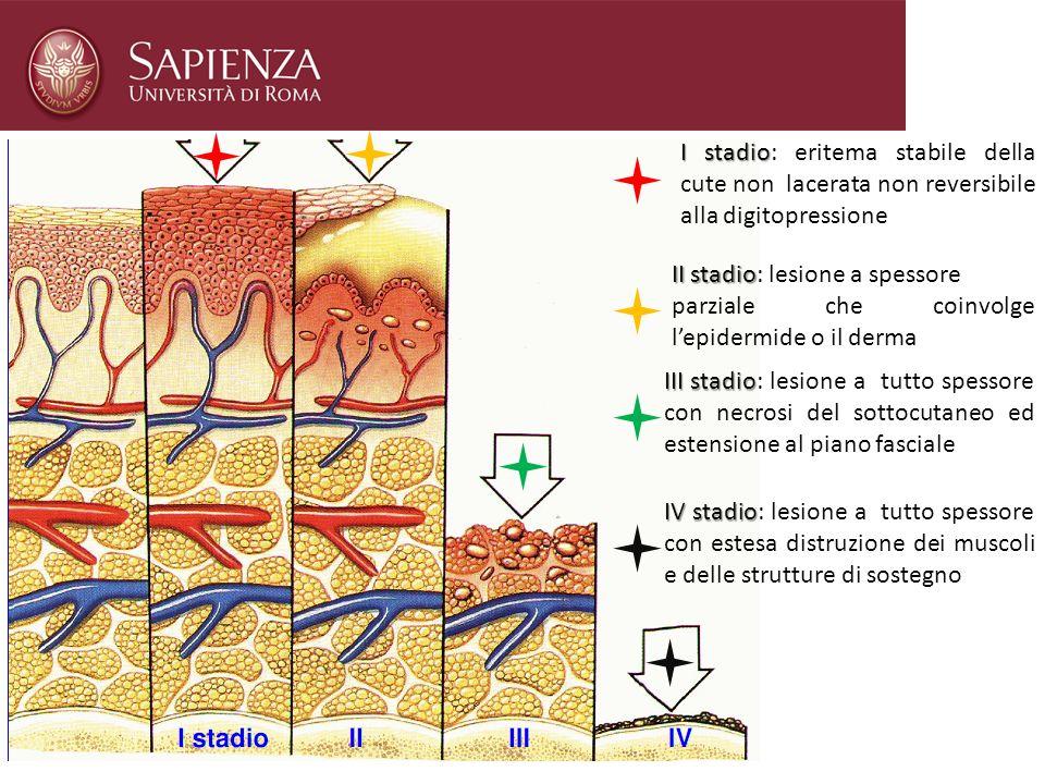 I stadio I stadio: eritema stabile della cute non lacerata non reversibile alla digitopressione II stadio II stadio: lesione a spessore parziale che c