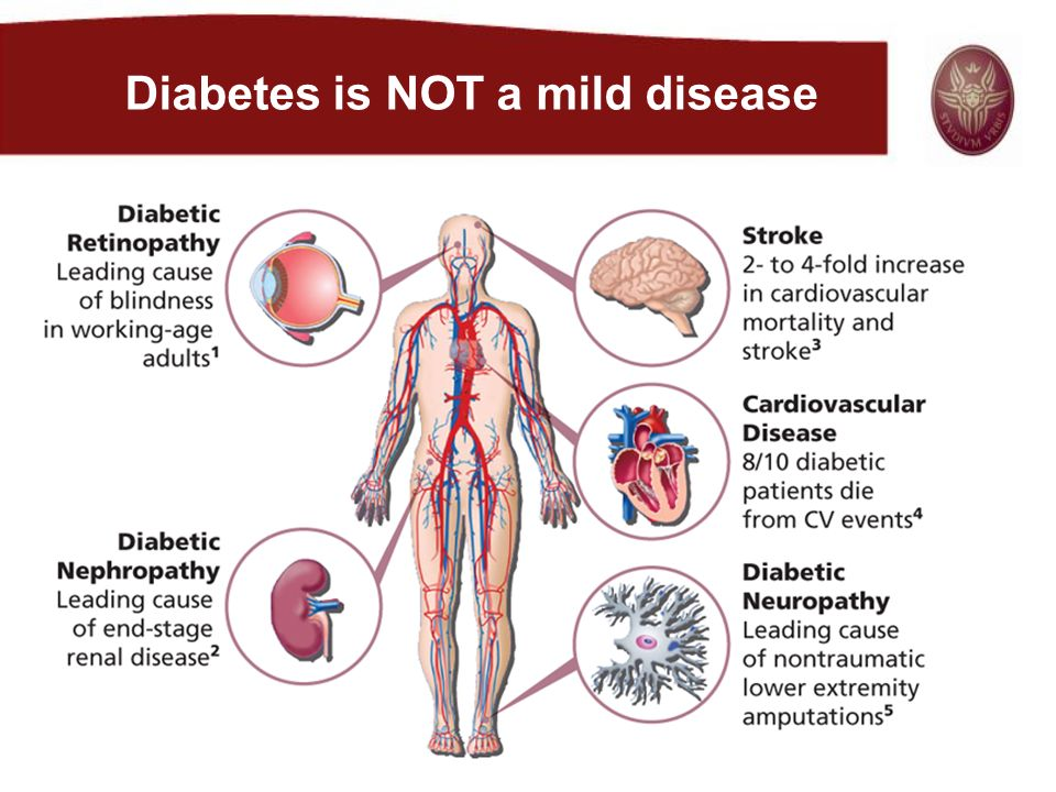 Subjects with type 2 diabetes have impaired first phase insulin secretion Time (min) Plasma insulin (µU/ml) 120 100 80 60 40 20 0 –300306090100 20 g glucose Control subjectsType 2 diabetes Plasma insulin (µU/ml) 120 100 80 60 40 20 0 –300306090100 Time (min) 20 g glucose Ward WK et al.