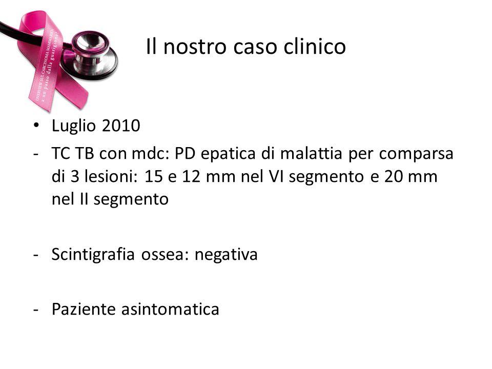 Il nostro caso clinico Luglio 2010 -TC TB con mdc: PD epatica di malattia per comparsa di 3 lesioni: 15 e 12 mm nel VI segmento e 20 mm nel II segment