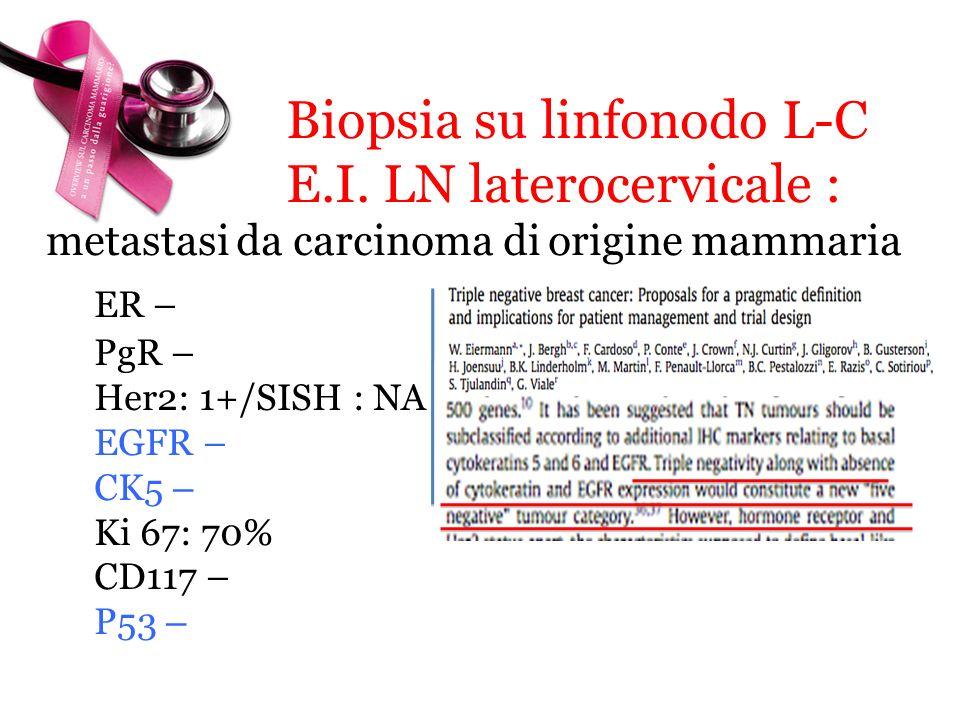Biopsia su linfonodo L-C E.I. LN laterocervicale : metastasi da carcinoma di origine mammaria ER – PgR – Her2: 1+/SISH : NA EGFR – CK5 – Ki 67: 70% CD