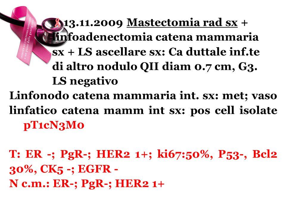 13.11.2009 Mastectomia rad sx + linfoadenectomia catena mammaria sx + LS ascellare sx: Ca duttale inf.te di altro nodulo QII diam 0.7 cm, G3. LS negat
