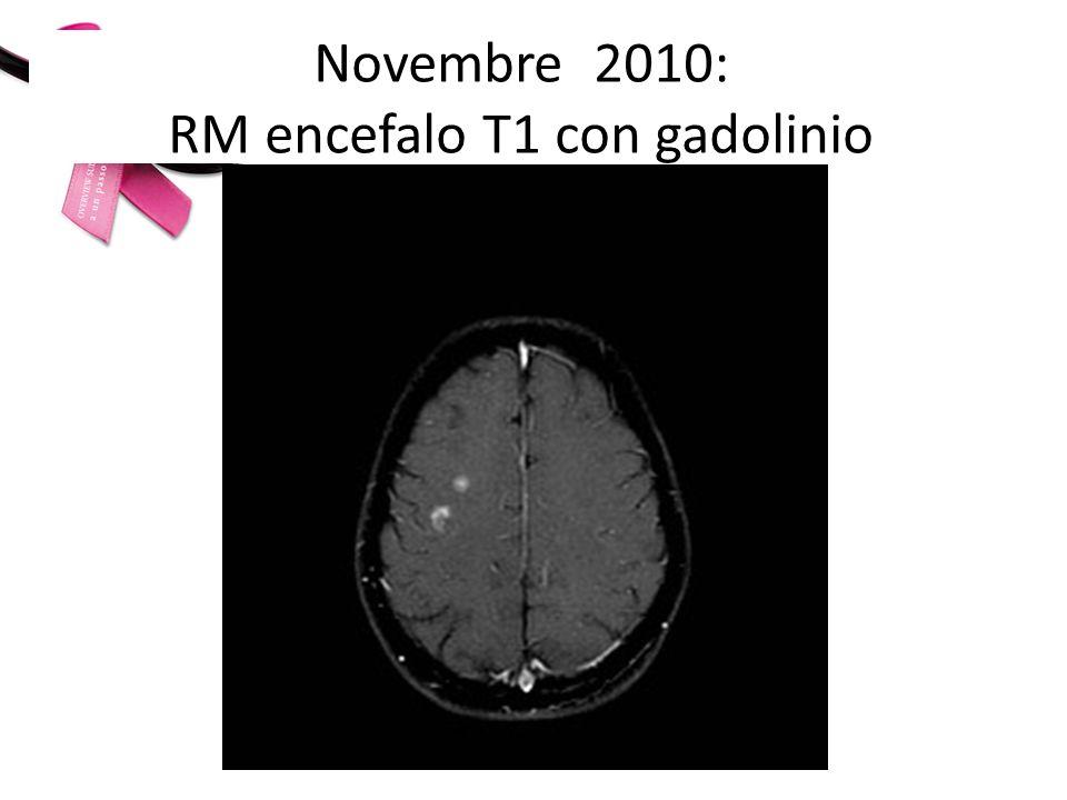 A- Trattamento locale terapia sistemica B- Terapia sistemica trattamento locale 1- Metastasi cerebrali di 6 e 13 mm di diametro (centro semiovale e corteccia frontale dx) asintomatiche, in pt con progressione extracranica asintomatica (ossea e linfonodale).