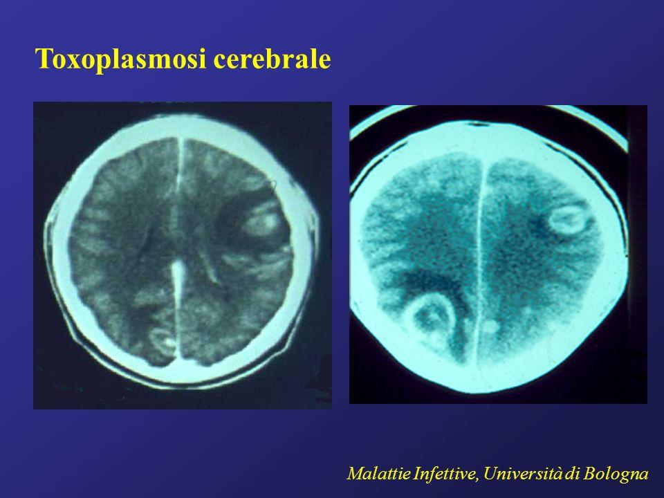 Toxoplasmosi cerebrale Malattie Infettive, Università di Bologna