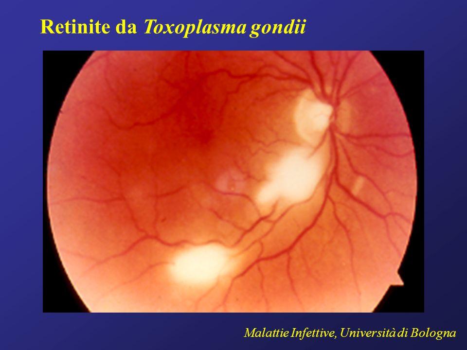 Retinite da Toxoplasma gondii Malattie Infettive, Università di Bologna