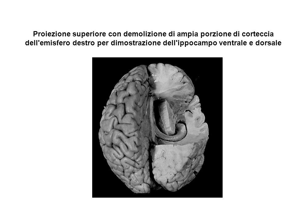 Proiezione superiore con demolizione di ampia porzione di corteccia dell'emisfero destro per dimostrazione dell'ippocampo ventrale e dorsale