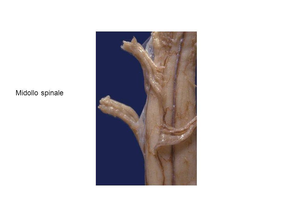 Proiezione superiore con demolizione di ampia porzione di corteccia dell emisfero destro per dimostrazione dell ippocampo ventrale e dorsale