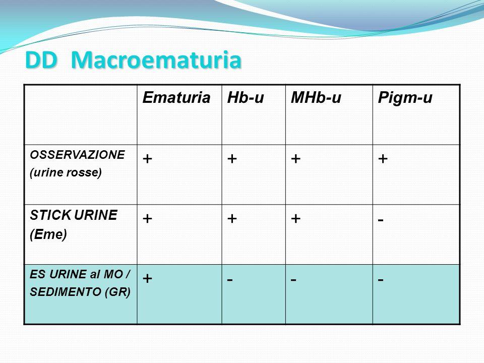 DD Macroematuria EmaturiaHb-uMHb-uPigm-u OSSERVAZIONE (urine rosse) ++++ STICK URINE (Eme) +++- ES URINE al MO / SEDIMENTO (GR) +---