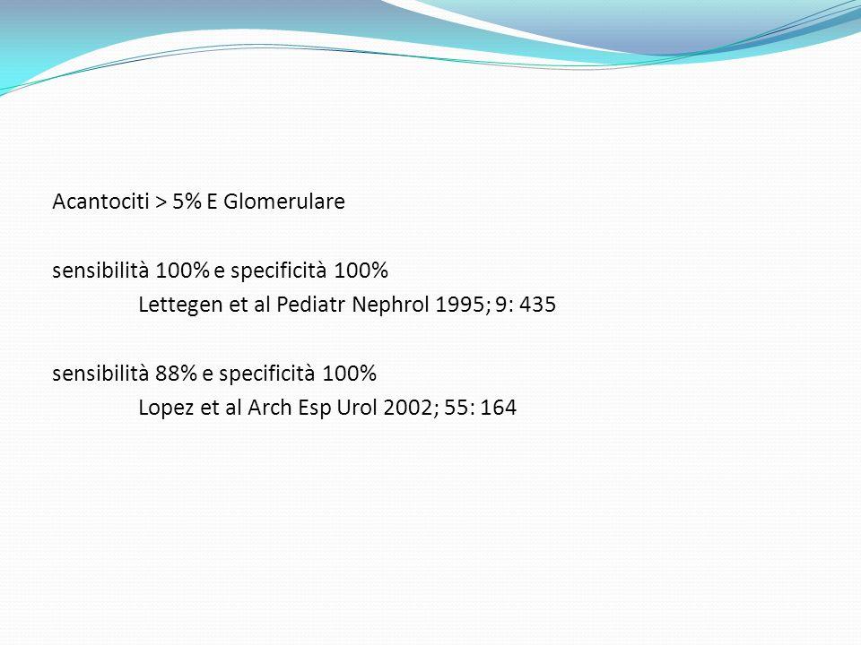 Acantociti > 5% E Glomerulare sensibilità 100% e specificità 100% Lettegen et al Pediatr Nephrol 1995; 9: 435 sensibilità 88% e specificità 100% Lopez