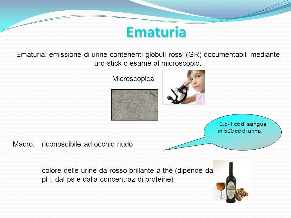 Ematuria Microscopica Ematuria: emissione di urine contenenti globuli rossi (GR) documentabili mediante uro-stick o esame al microscopio. Macro: ricon