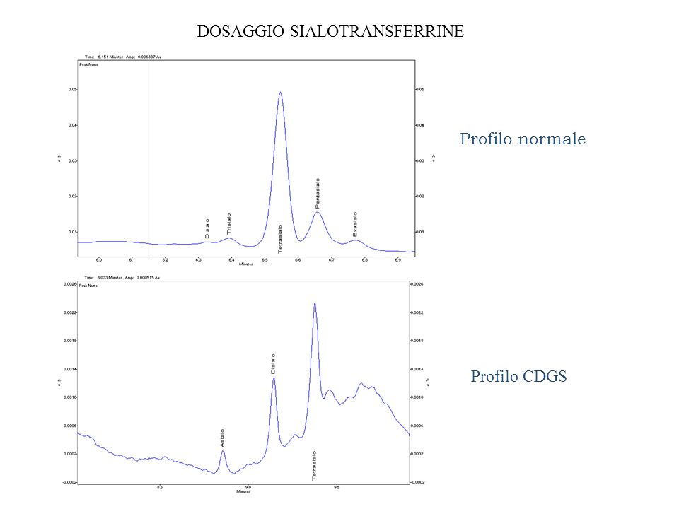 Profilo CDGS Profilo normale DOSAGGIO SIALOTRANSFERRINE