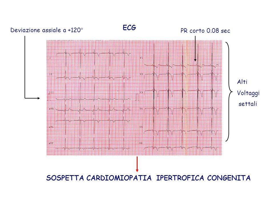 ECG Deviazione assiale a +120° Alti Voltaggi settali PR corto 0.08 sec SOSPETTA CARDIOMIOPATIA IPERTROFICA CONGENITA