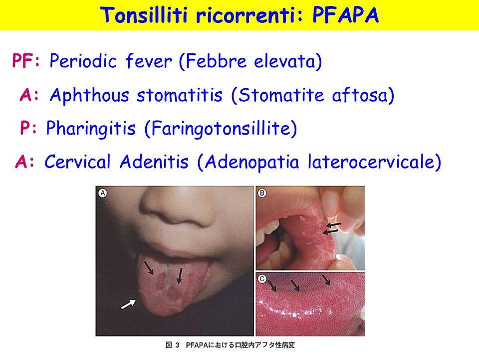 PF: Periodic fever (Febbre elevata) A: Aphthous stomatitis (Stomatite aftosa) P: Pharingitis (Faringotonsillite) A: Cervical Adenitis (Adenopatia late