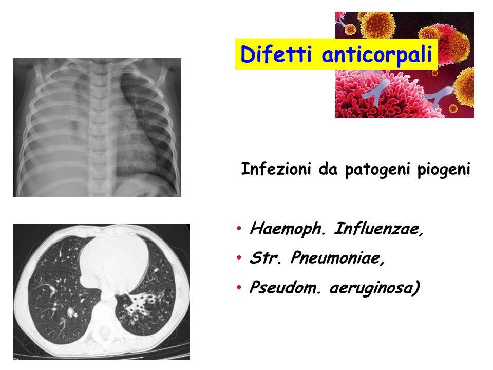 Infezioni da patogeni piogeni Haemoph. Influenzae, Str. Pneumoniae, Pseudom. aeruginosa) Difetti anticorpali
