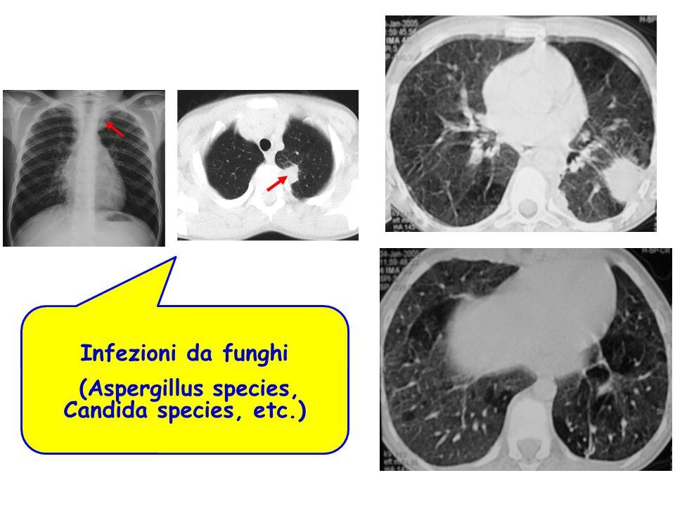 Infezioni da funghi (Aspergillus species, Candida species, etc.)