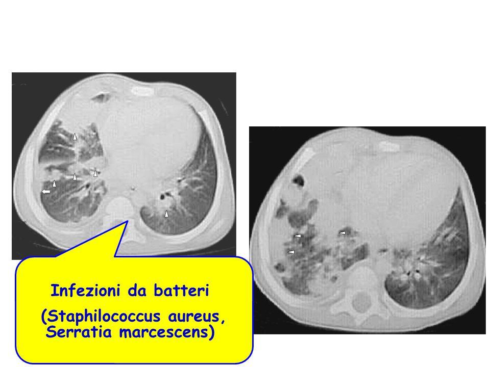 Infezioni da batteri (Staphilococcus aureus, Serratia marcescens)