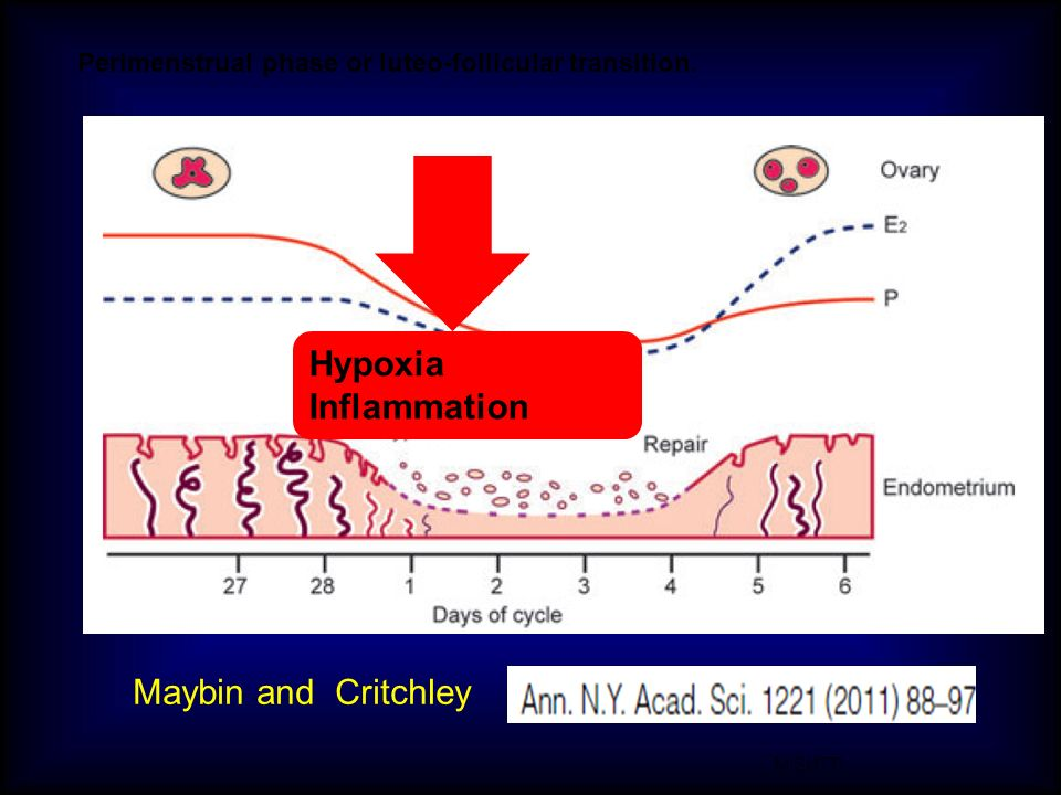 M.SUTTI Perimenstrual phase or luteo-follicular transition. Maybin and Critchley Hypoxia Inflammation