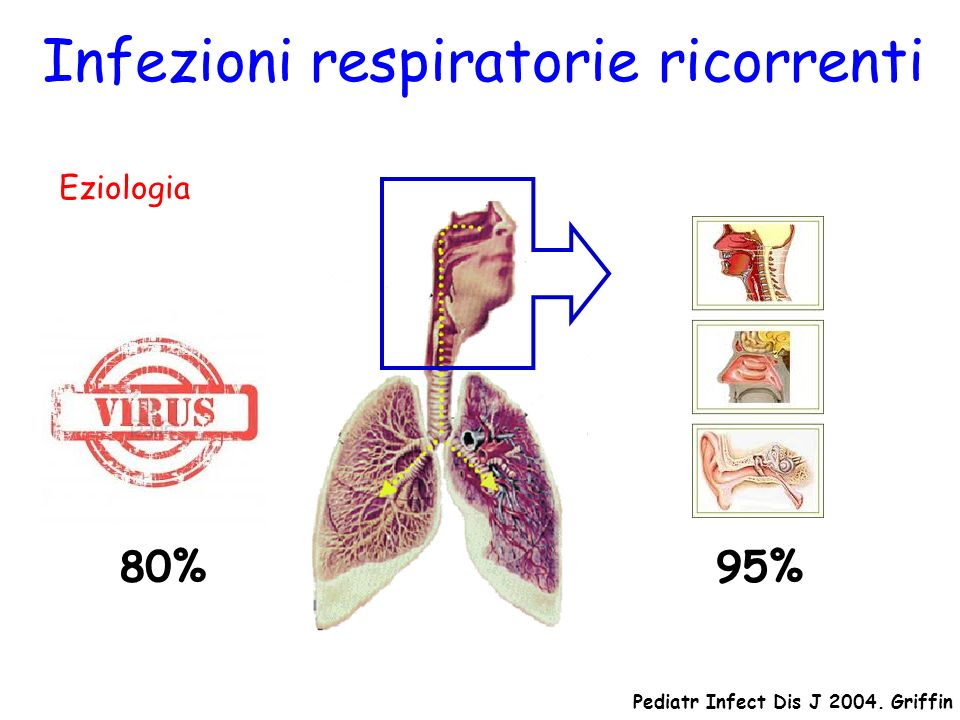 Eziologia 95% Infezioni respiratorie ricorrenti 80% Pediatr Infect Dis J 2004. Griffin