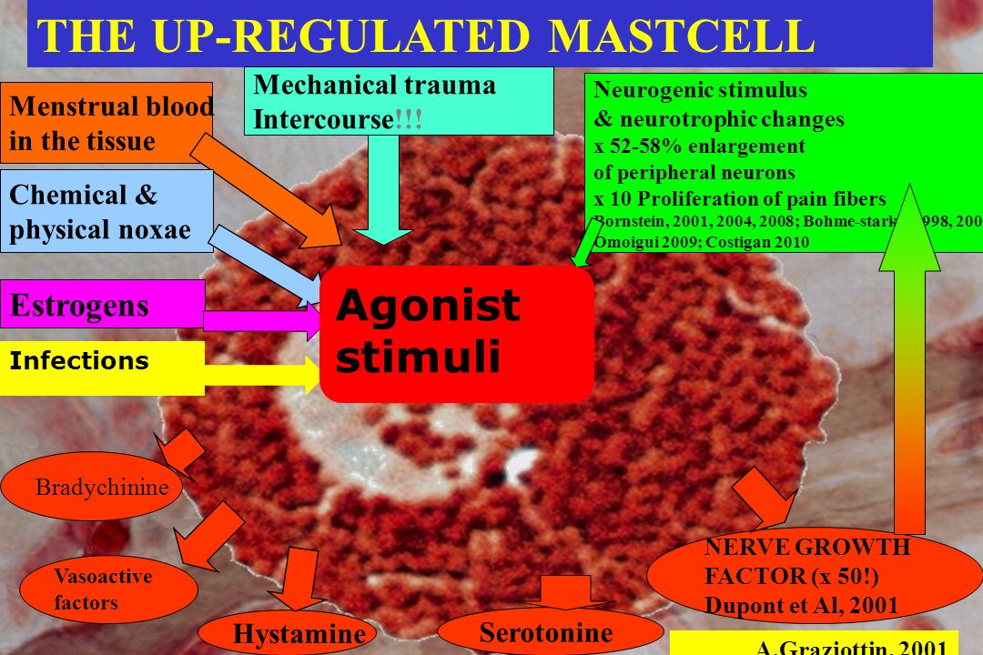 Picture: Courtesy of R. Della Valle The mast-cell is the powerful protagonist behind the clinical scenario of inflammation and pain More than 37.515 p