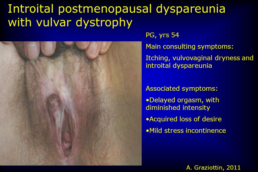Severe vulvo-vaginal dystrophy with introital dyspareunia A.Graziottin, 2006