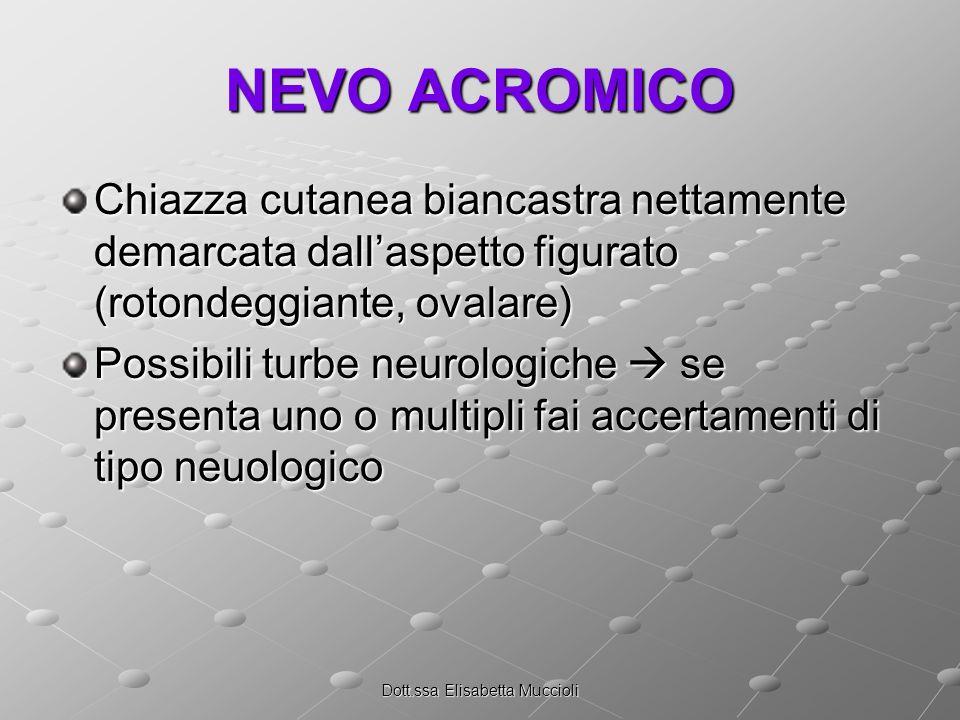 Dott.ssa Elisabetta Muccioli NEVO ACROMICO Chiazza cutanea biancastra nettamente demarcata dallaspetto figurato (rotondeggiante, ovalare) Possibili turbe neurologiche se presenta uno o multipli fai accertamenti di tipo neuologico