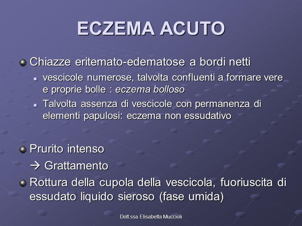 Dott.ssa Elisabetta Muccioli ECZEMA CRONICO Comparsa in sede delle lesioni di cute secca con aspetti eritemato-desquamativi Possono essere presenti croste da grattamento Possono essere presenti croste da grattamento Prurito più o meno presente