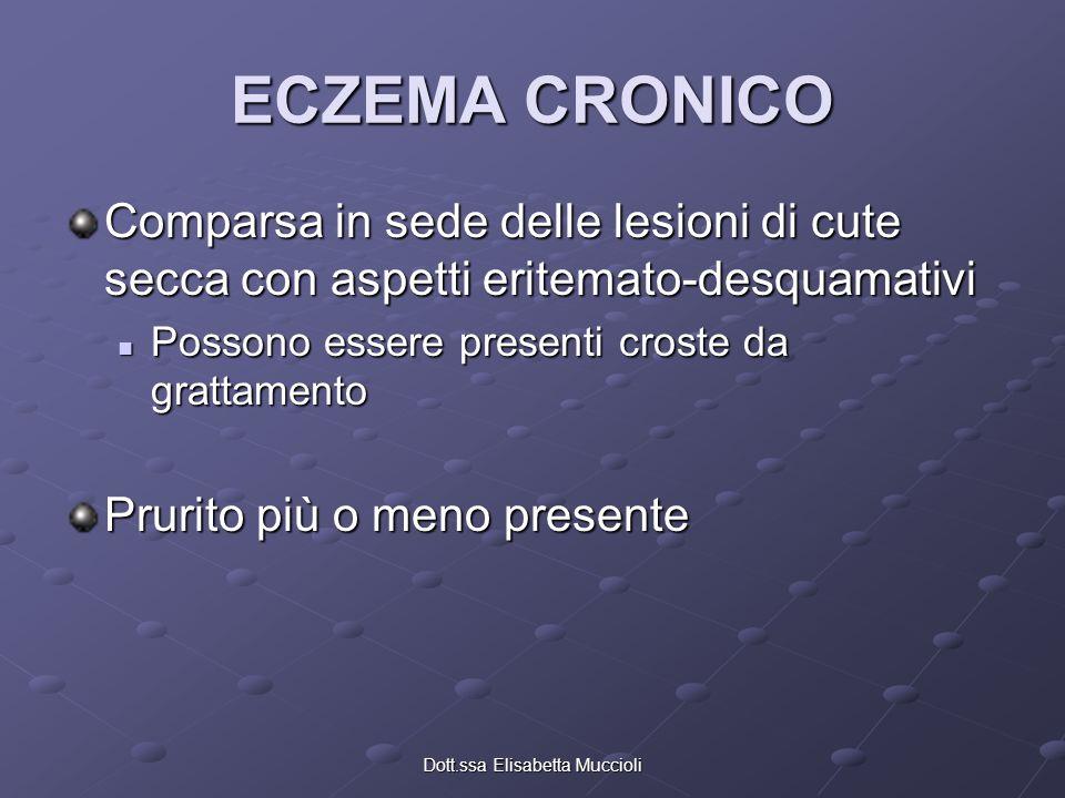 Dott.ssa Elisabetta Muccioli ECZEMA CRONICO Comparsa in sede delle lesioni di cute secca con aspetti eritemato-desquamativi Possono essere presenti cr