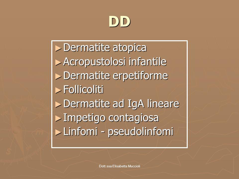 Dott.ssa Elisabetta Muccioli DD Dermatite atopica Dermatite atopica Acropustolosi infantile Acropustolosi infantile Dermatite erpetiforme Dermatite er