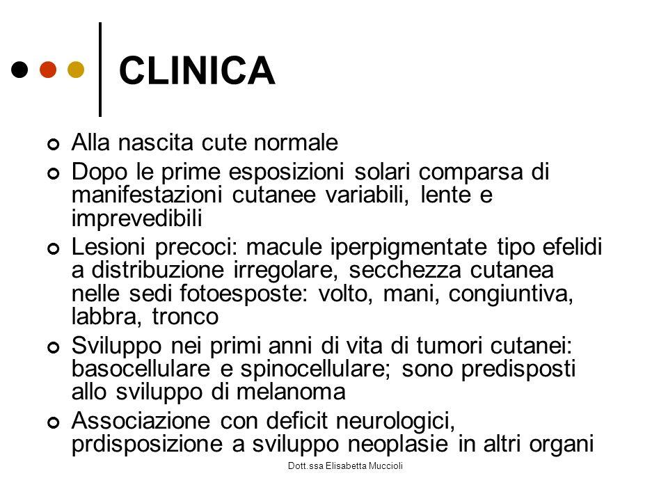 Dott.ssa Elisabetta Muccioli CLINICA Alla nascita cute normale Dopo le prime esposizioni solari comparsa di manifestazioni cutanee variabili, lente e