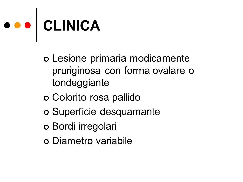 CLINICA Lesione primaria modicamente pruriginosa con forma ovalare o tondeggiante Colorito rosa pallido Superficie desquamante Bordi irregolari Diamet