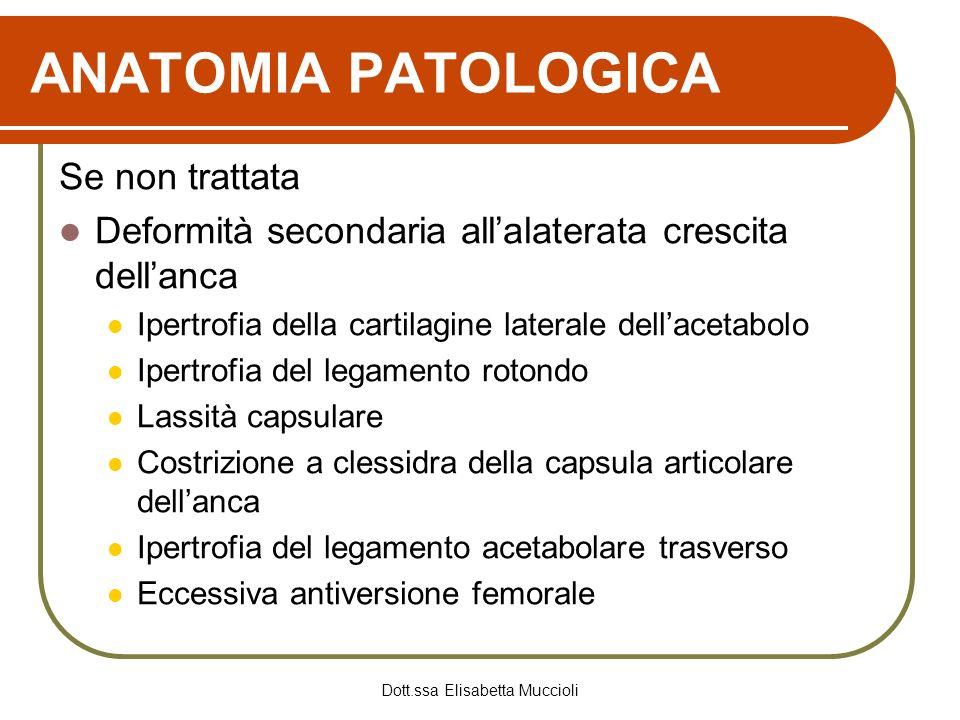 Dott.ssa Elisabetta Muccioli ANATOMIA PATOLOGICA Se non trattata Deformità secondaria allalaterata crescita dellanca Ipertrofia della cartilagine late