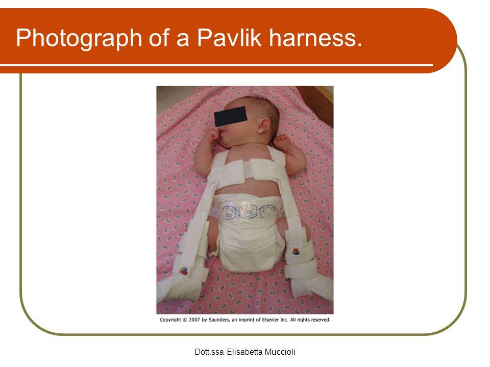Dott.ssa Elisabetta Muccioli Photograph of a Pavlik harness.