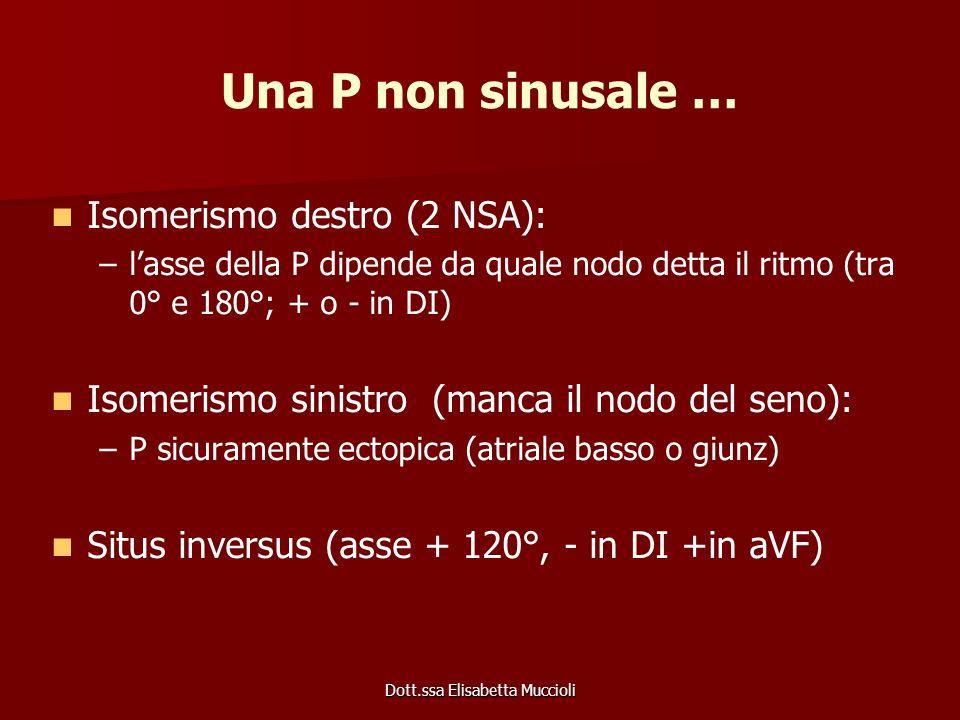 Dott.ssa Elisabetta Muccioli Una P non sinusale … Isomerismo destro (2 NSA): – –lasse della P dipende da quale nodo detta il ritmo (tra 0° e 180°; + o