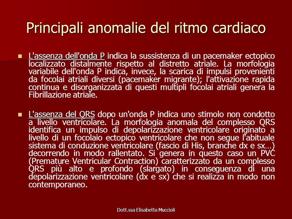 Dott.ssa Elisabetta Muccioli Principali anomalie del ritmo cardiaco L'assenza dell'onda P L'assenza dell'onda P indica la sussistenza di un pacemaker