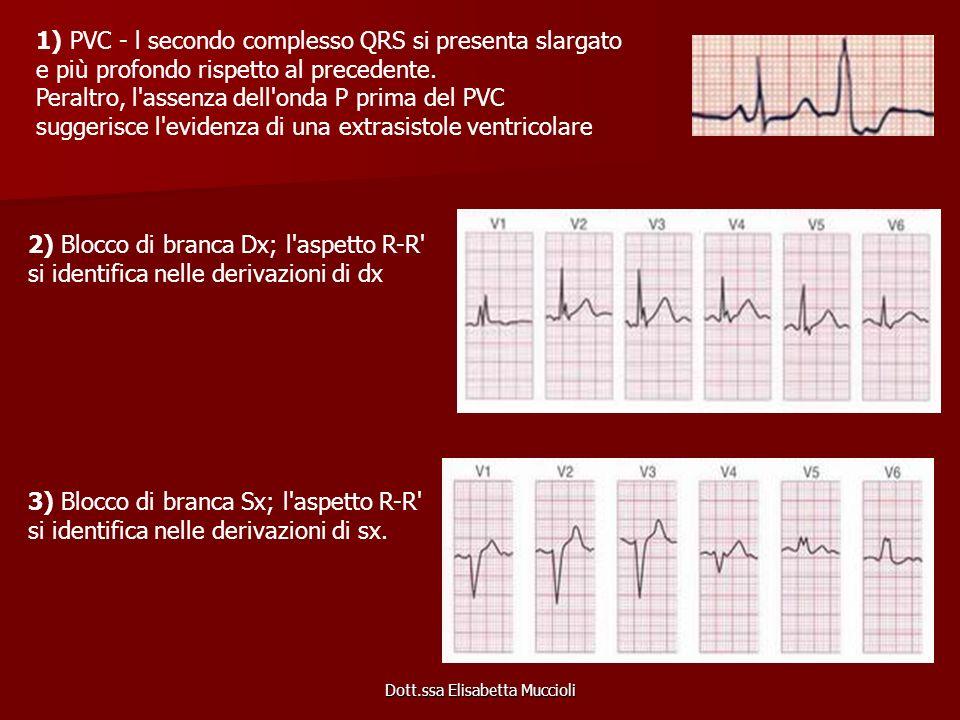Dott.ssa Elisabetta Muccioli 1) PVC - l secondo complesso QRS si presenta slargato e più profondo rispetto al precedente. Peraltro, l'assenza dell'ond