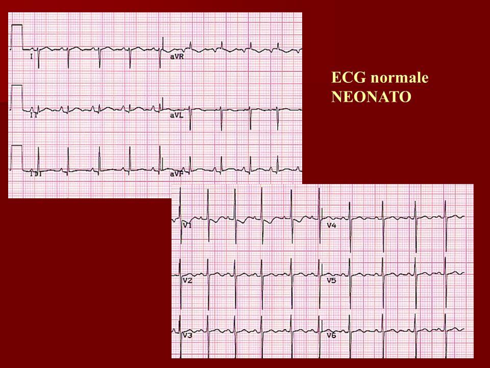 Dott.ssa Elisabetta Muccioli ECG normale NEONATO
