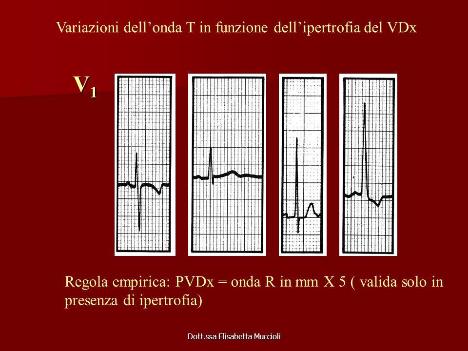 Dott.ssa Elisabetta Muccioli V1V1V1V1 Variazioni dellonda T in funzione dellipertrofia del VDx Regola empirica: PVDx = onda R in mm X 5 ( valida solo