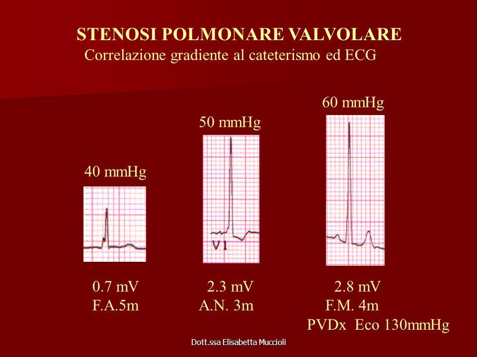Dott.ssa Elisabetta Muccioli 0.7 mV 2.3 mV 2.8 mV F.A.5m A.N. 3m F.M. 4m PVDx Eco 130mmHg STENOSI POLMONARE VALVOLARE Correlazione gradiente al catete