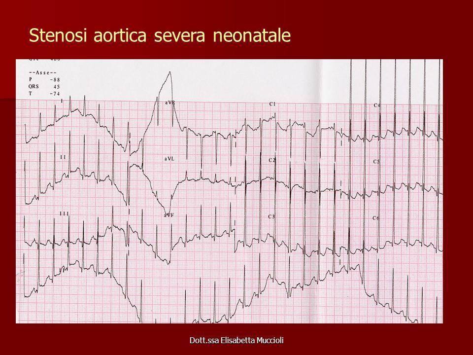 Dott.ssa Elisabetta Muccioli Stenosi aortica severa neonatale