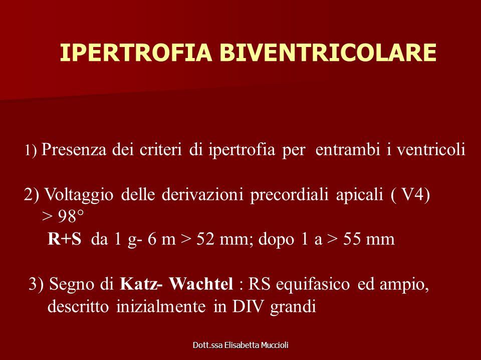 Dott.ssa Elisabetta Muccioli 1) Presenza dei criteri di ipertrofia per entrambi i ventricoli 2) Voltaggio delle derivazioni precordiali apicali ( V4)