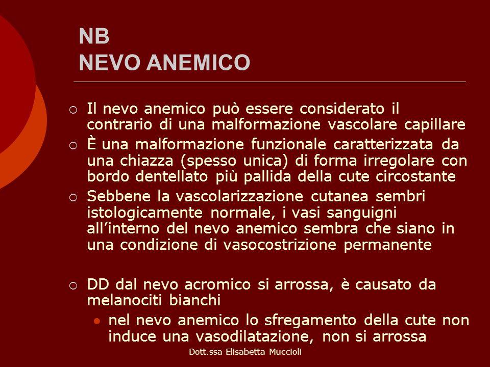 Dott.ssa Elisabetta Muccioli NB NEVO ANEMICO Il nevo anemico può essere considerato il contrario di una malformazione vascolare capillare È una malfor