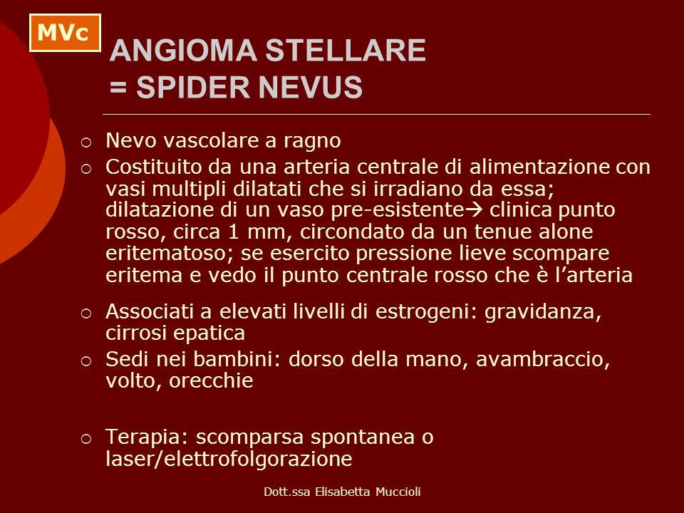 Dott.ssa Elisabetta Muccioli ANGIOMA STELLARE = SPIDER NEVUS Nevo vascolare a ragno Costituito da una arteria centrale di alimentazione con vasi multi