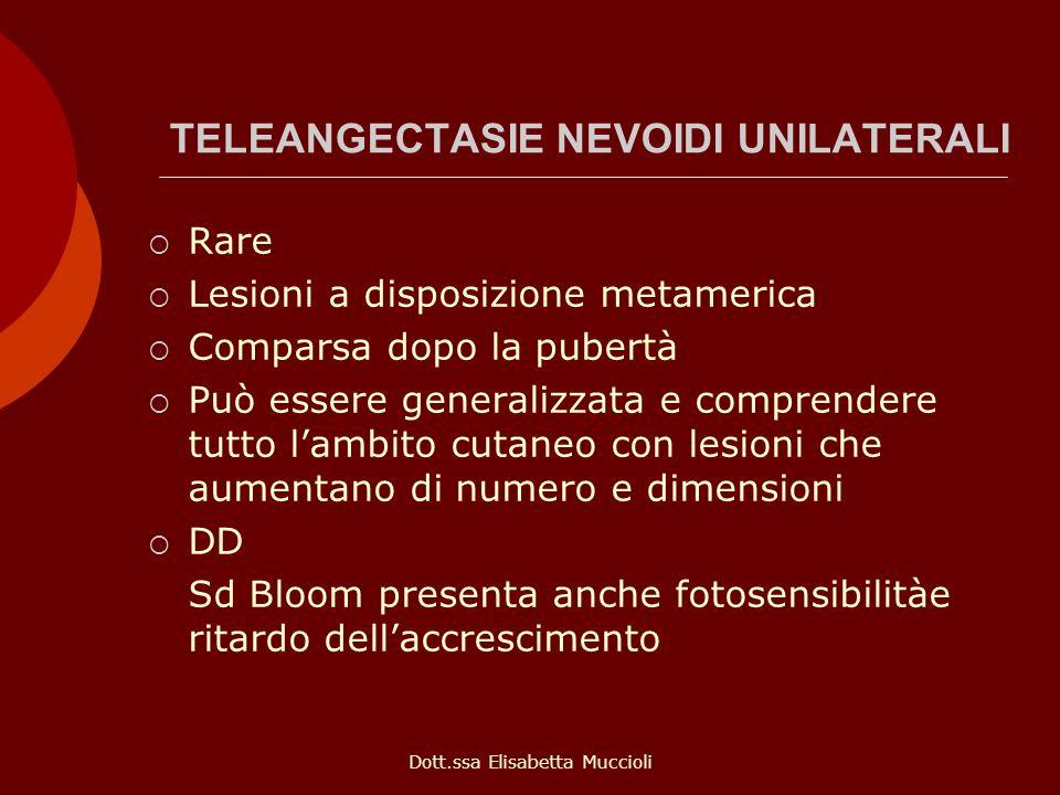 Dott.ssa Elisabetta Muccioli TELEANGECTASIE NEVOIDI UNILATERALI Rare Lesioni a disposizione metamerica Comparsa dopo la pubertà Può essere generalizza