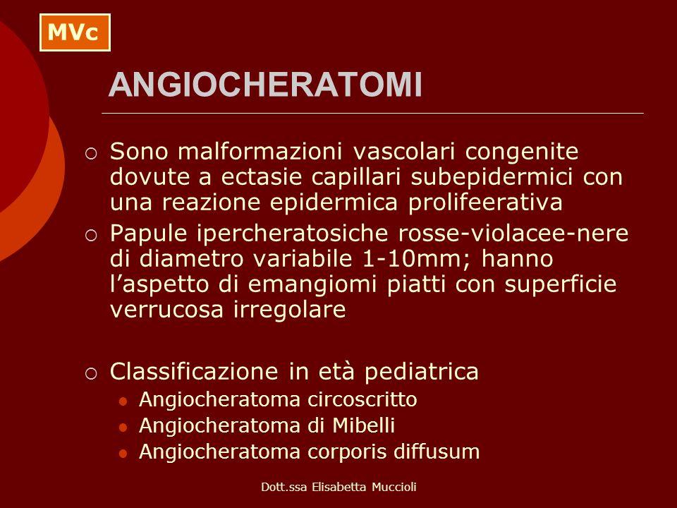 Dott.ssa Elisabetta Muccioli ANGIOCHERATOMI Sono malformazioni vascolari congenite dovute a ectasie capillari subepidermici con una reazione epidermic