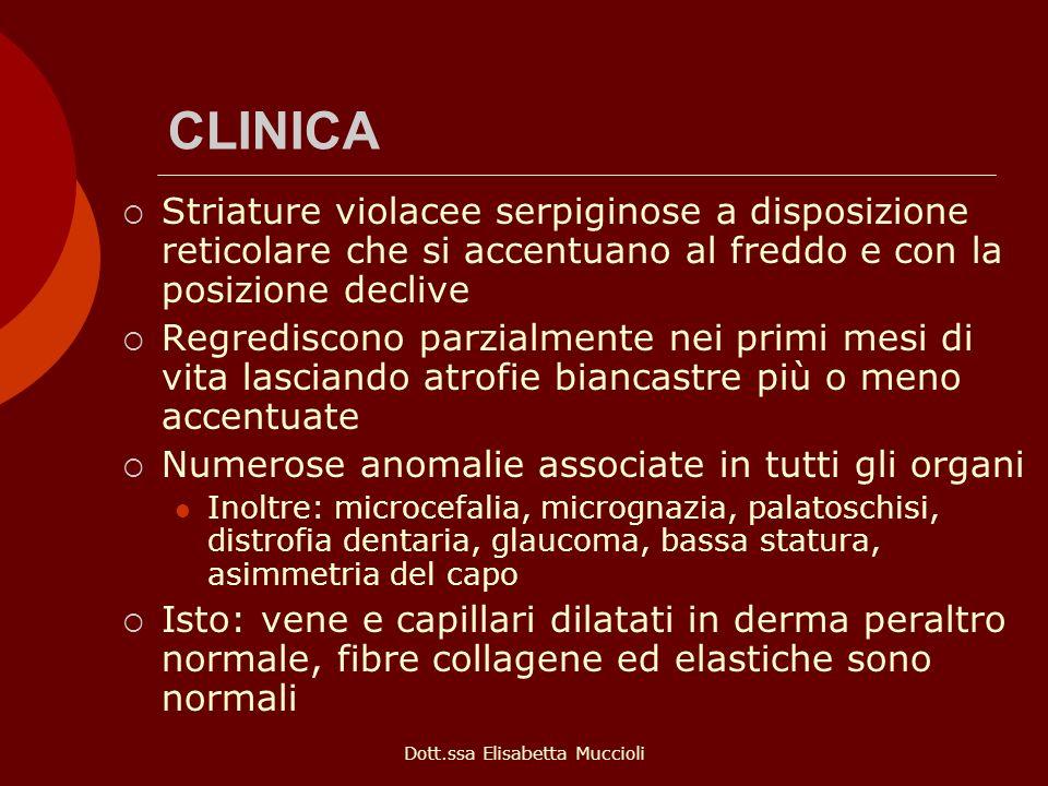 Dott.ssa Elisabetta Muccioli CLINICA Striature violacee serpiginose a disposizione reticolare che si accentuano al freddo e con la posizione declive R