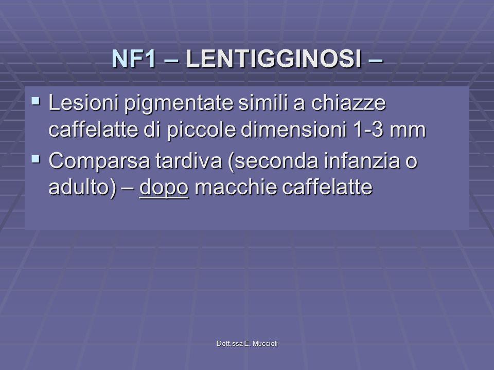 Dott.ssa E. Muccioli Lesioni pigmentate simili a chiazze caffelatte di piccole dimensioni 1-3 mm Lesioni pigmentate simili a chiazze caffelatte di pic