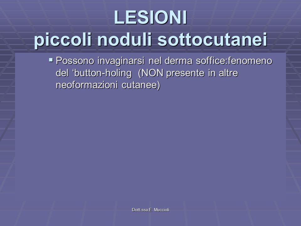 Dott.ssa E. Muccioli LESIONI piccoli noduli sottocutanei Possono invaginarsi nel derma soffice:fenomeno del button-holing (NON presente in altre neofo