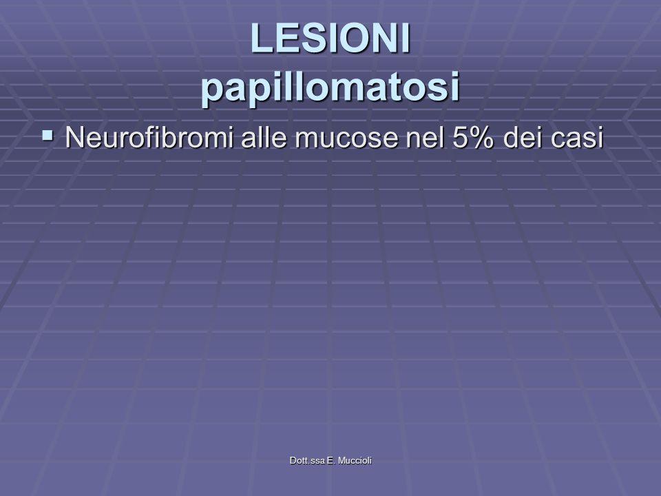 Dott.ssa E. Muccioli LESIONI papillomatosi Neurofibromi alle mucose nel 5% dei casi Neurofibromi alle mucose nel 5% dei casi