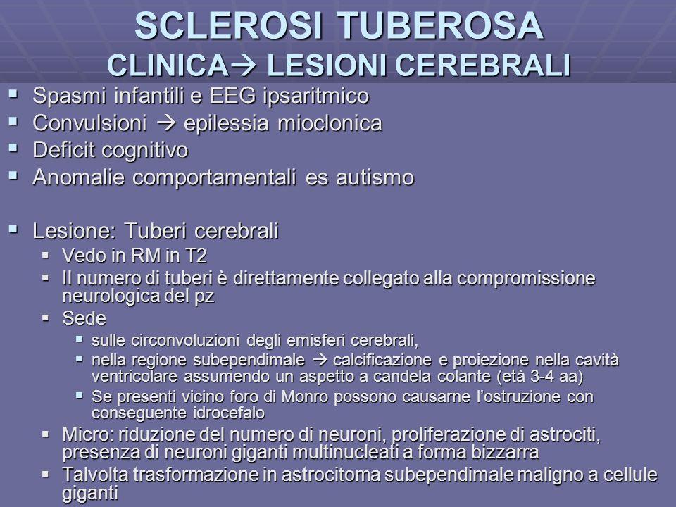 Dott.ssa E. Muccioli SCLEROSI TUBEROSA CLINICA LESIONI CEREBRALI Spasmi infantili e EEG ipsaritmico Spasmi infantili e EEG ipsaritmico Convulsioni epi