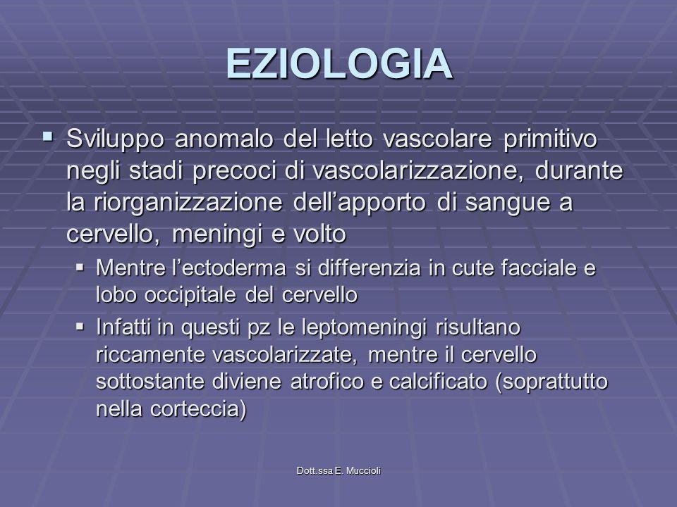 Dott.ssa E. Muccioli EZIOLOGIA Sviluppo anomalo del letto vascolare primitivo negli stadi precoci di vascolarizzazione, durante la riorganizzazione de