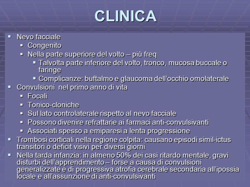 Dott.ssa E. MuccioliCLINICA Nevo facciale Nevo facciale Congenito Congenito Nella parte superiore del volto – più freq Nella parte superiore del volto